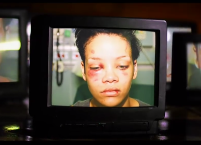 Rihanna after the assault  Credit: Chris Brown: Welcome to My Life/Riveting Entertainment