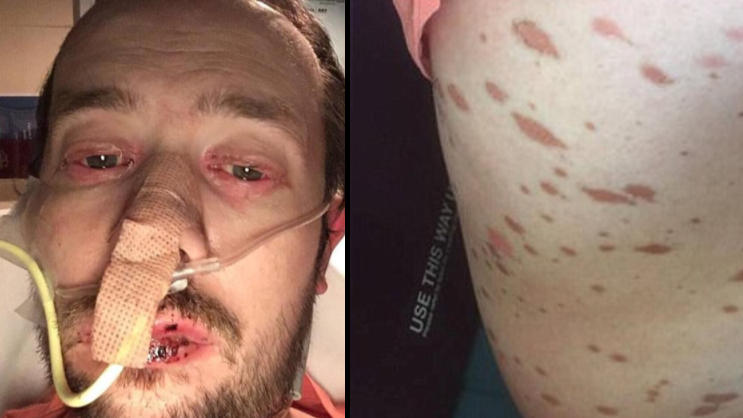 Man Ends Up In Hospital For A Month After Dismissing Rare Condition As Flu