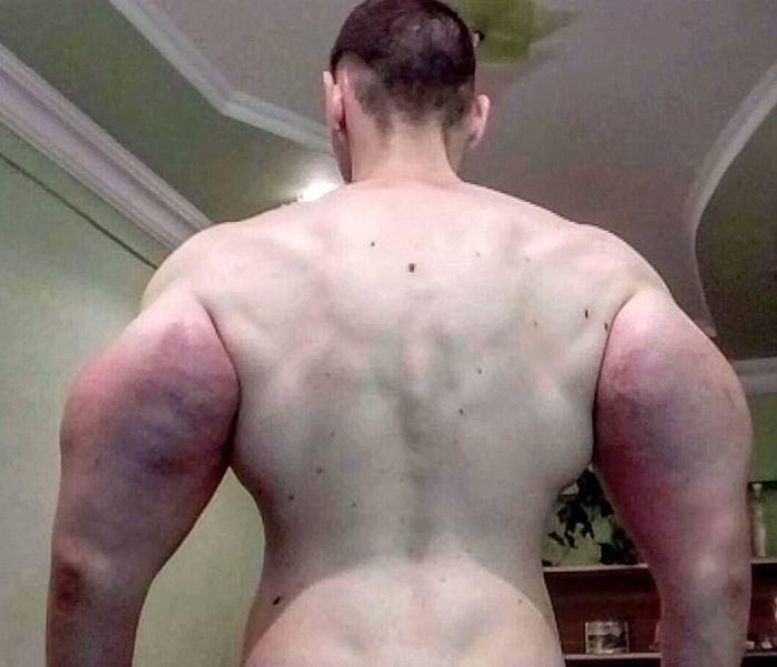 russian man kirill tereshin uses chemicals to achieve unnatural body