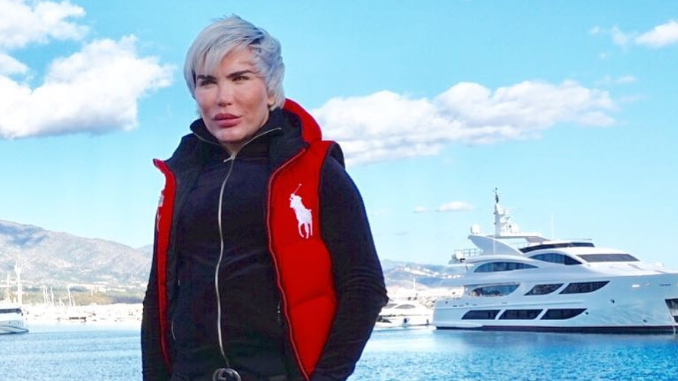 'Human Ken Doll' Rodrigo Alves Shares Snaps Of How He Looked Pre-Surgery