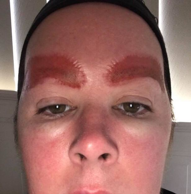 Woman Shares Pictures Of Her Eyebrows After Botched Tattoo Treatment Ladbible