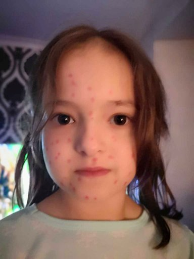 Lily had to go to school with the permanent inking all over her and convince friends that she wasn't contagious. Credit: Kennedy News and Media