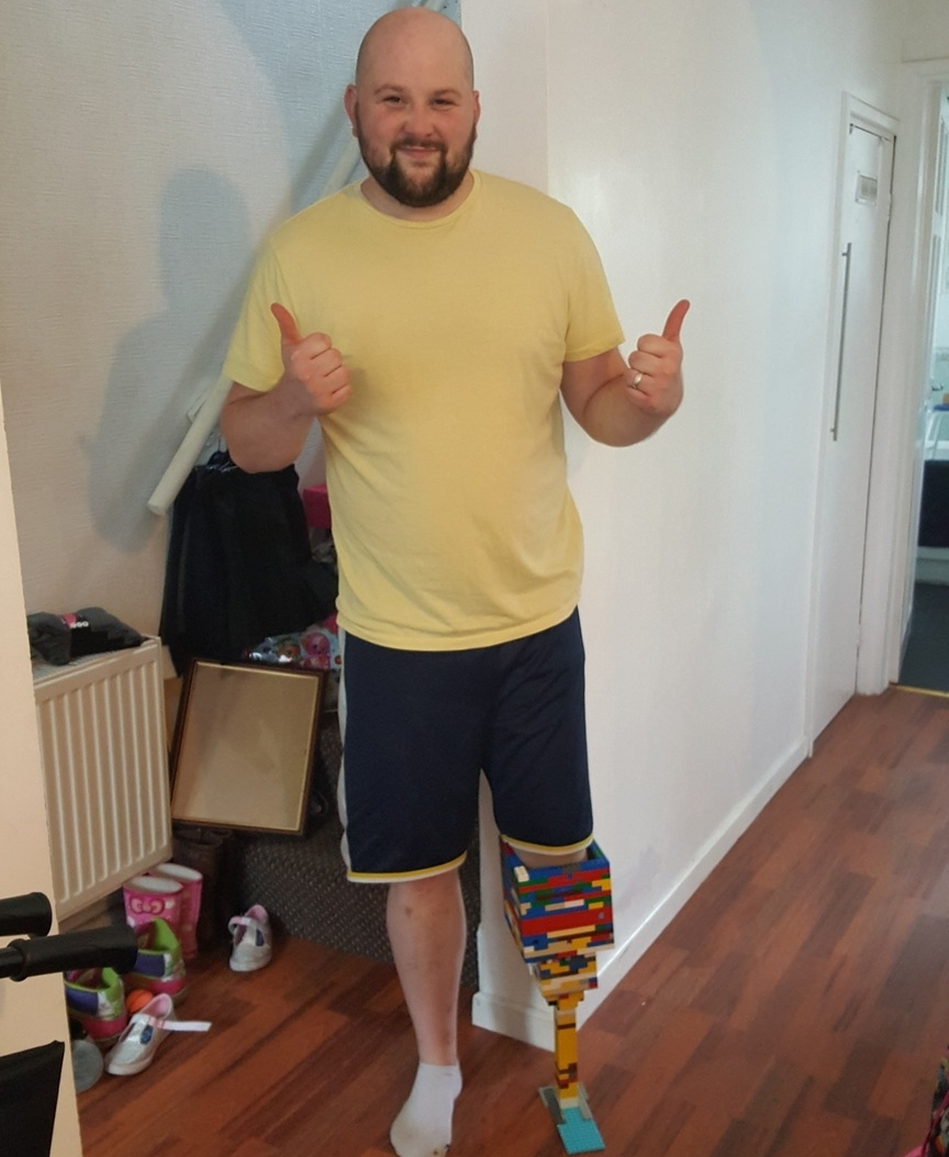 This lad built himself a leg out of lego whilst waiting for his new one to be built- class!