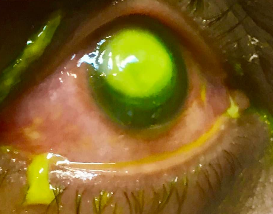 The doctor explained the eye looked green due to a dye that 'pools in areas of corneal compromise'. Credit: Vita Eye Clinic