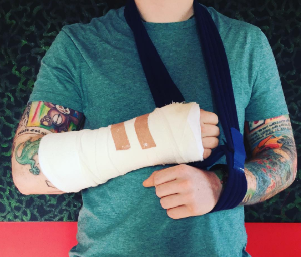 Ed Sheeran Cancels Upcoming Shows After Breaking His Arm