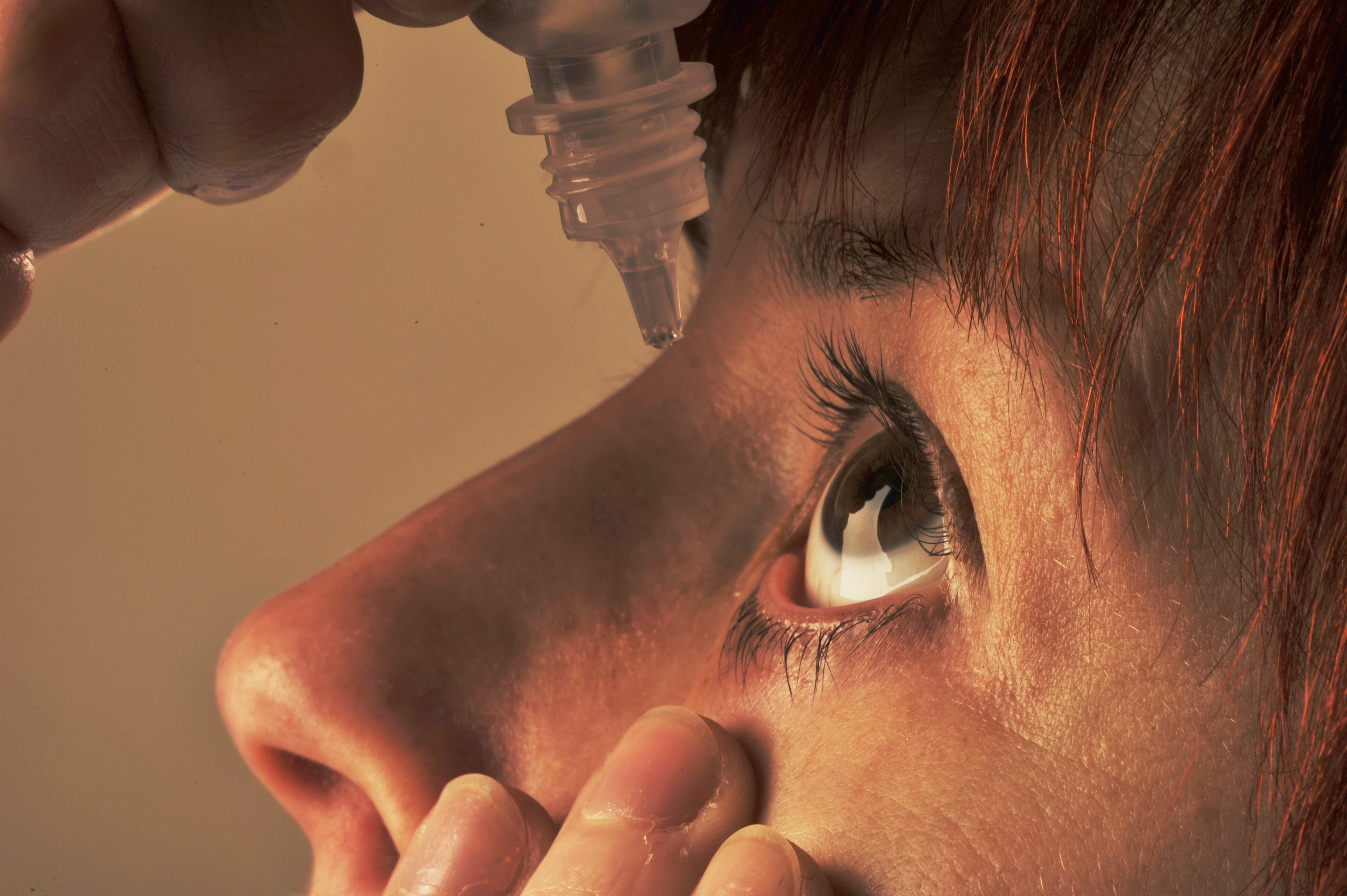 Using medicated eye drops can help with watery and itchy peepers. Credit: PA