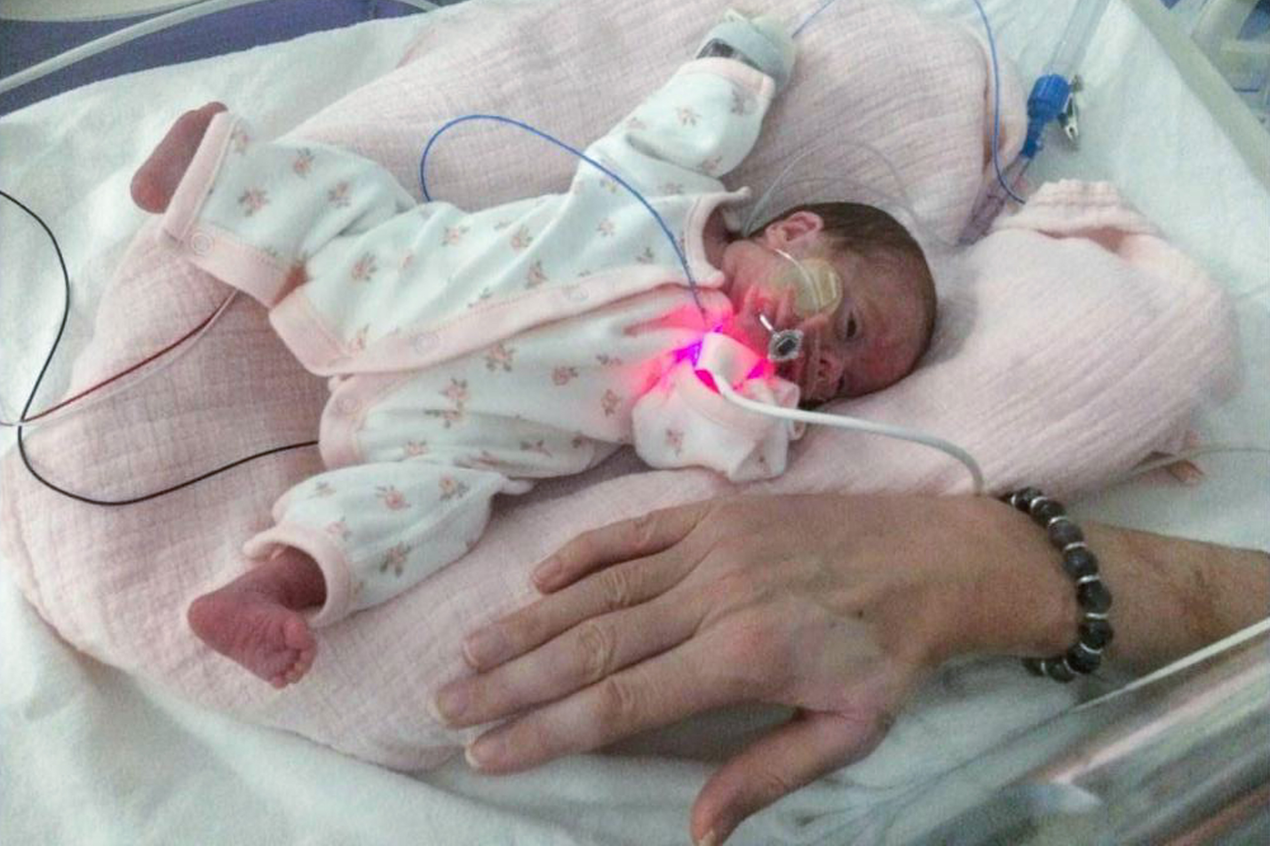 Youngest Baby Ever To Survive In UK Now A Happy, Healthy ...
