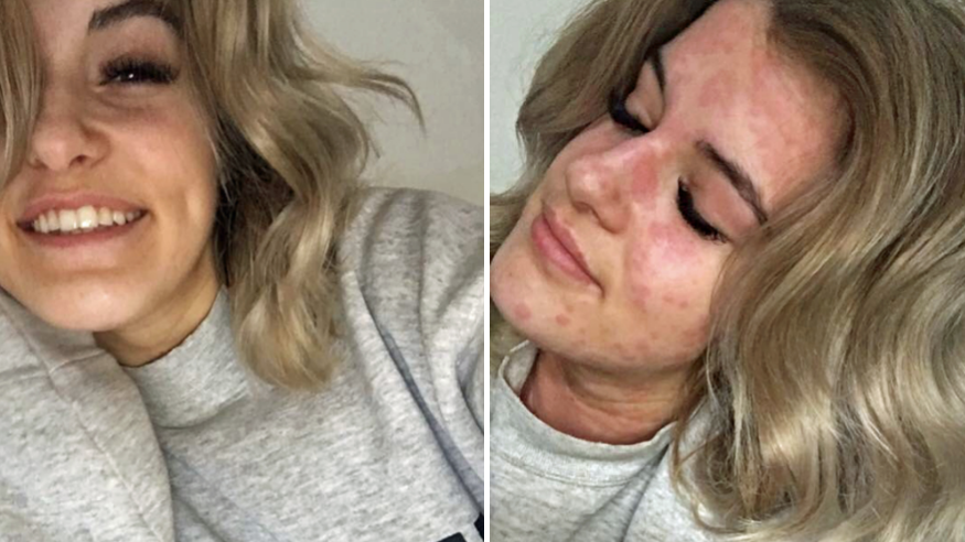 Meet The 21-Year-Old Woman Who Is Allergic To The Cold