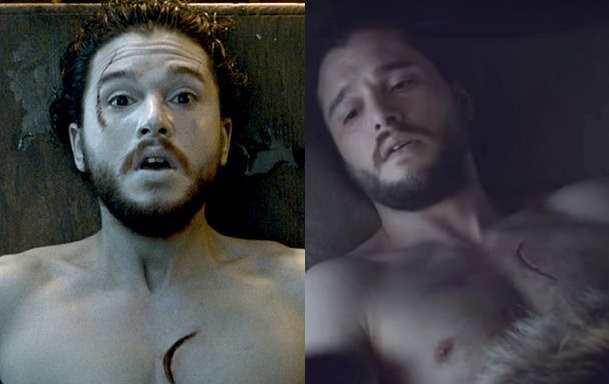 Scar there, scar gone... Credit: HBO