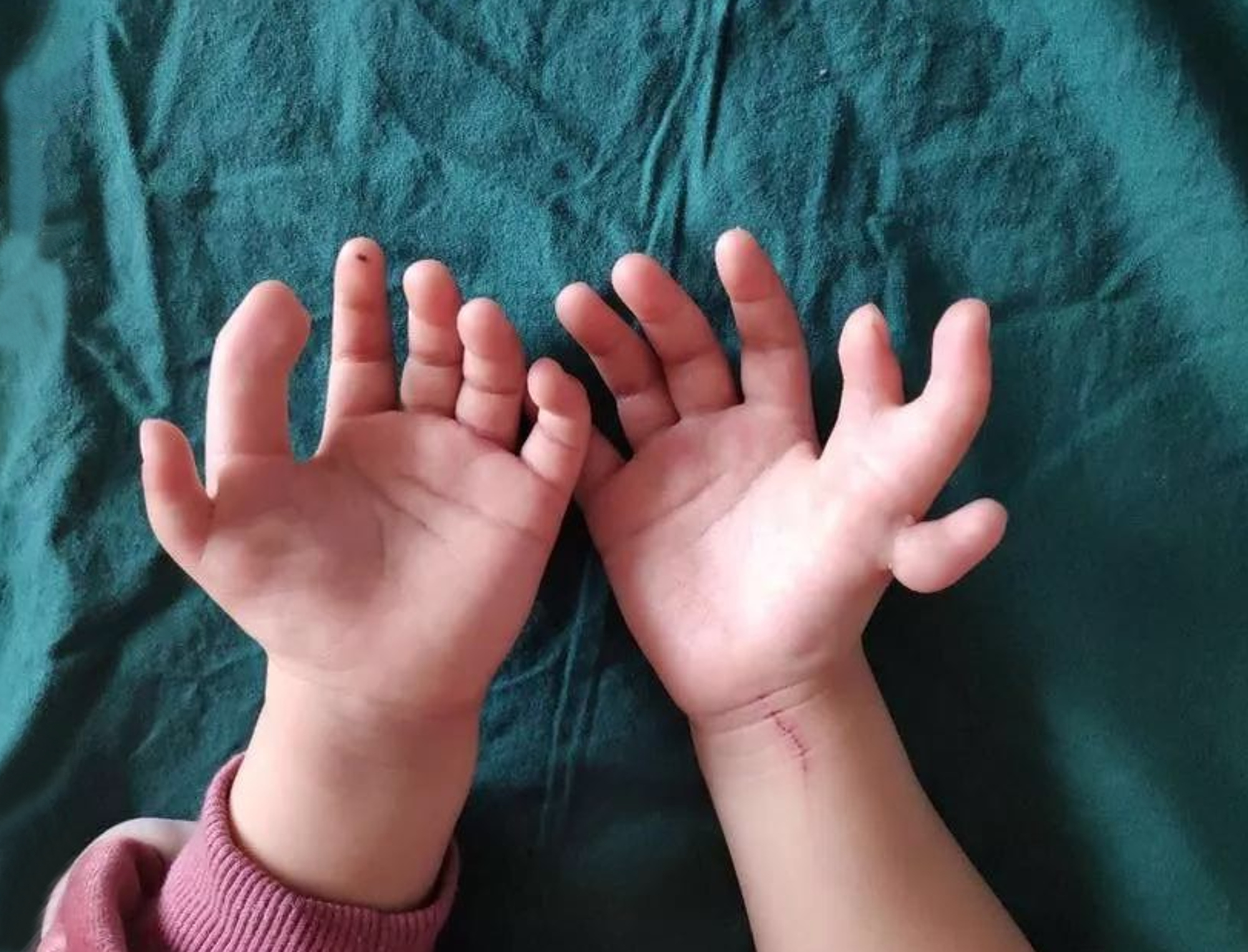 This three-year-old Chinese girl had 13 fingers. Credit: Asiawire