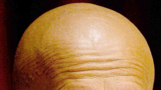 Scientists Think They've Found A Way To Cure Baldness