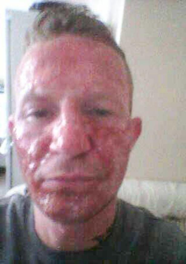 Facial Boils Pictures