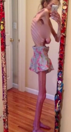 Woman Reveals Her 16 Year Battle With Anorexia And How It
