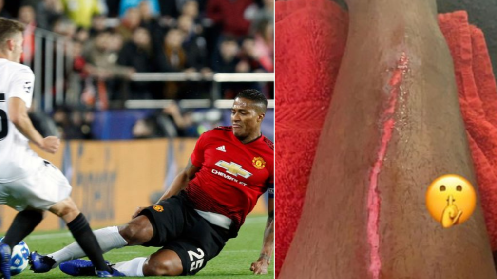 Antonio Valencia Posts Picture Of The Gruesome Scar On His Leg