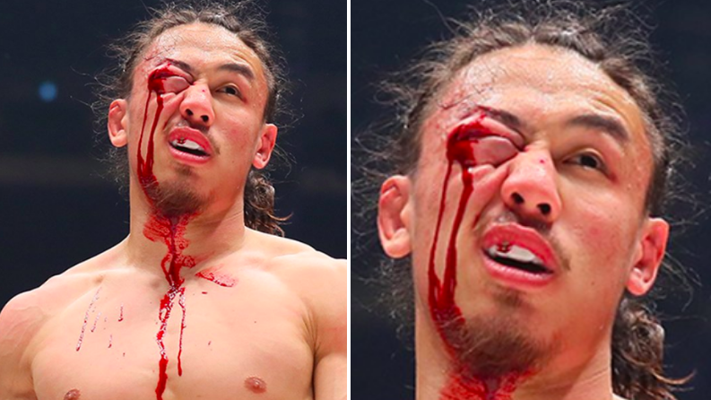 Yusuke Yachi Suffers Gruesome Eye Injury At Rizin 14