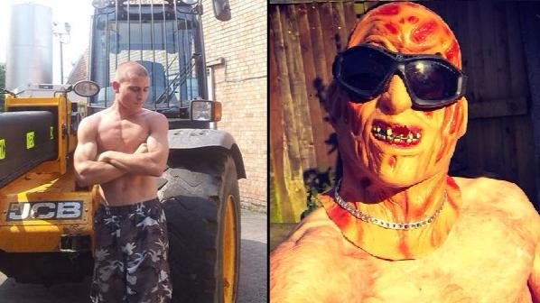 Badly Burned LAD Wears Freddy Krueger Mask To Night Club