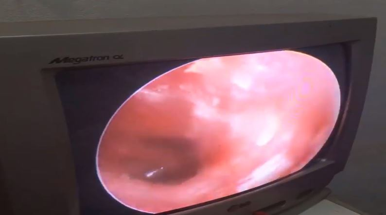The woman's ear after the buildup was removed. Credit: Newsflare