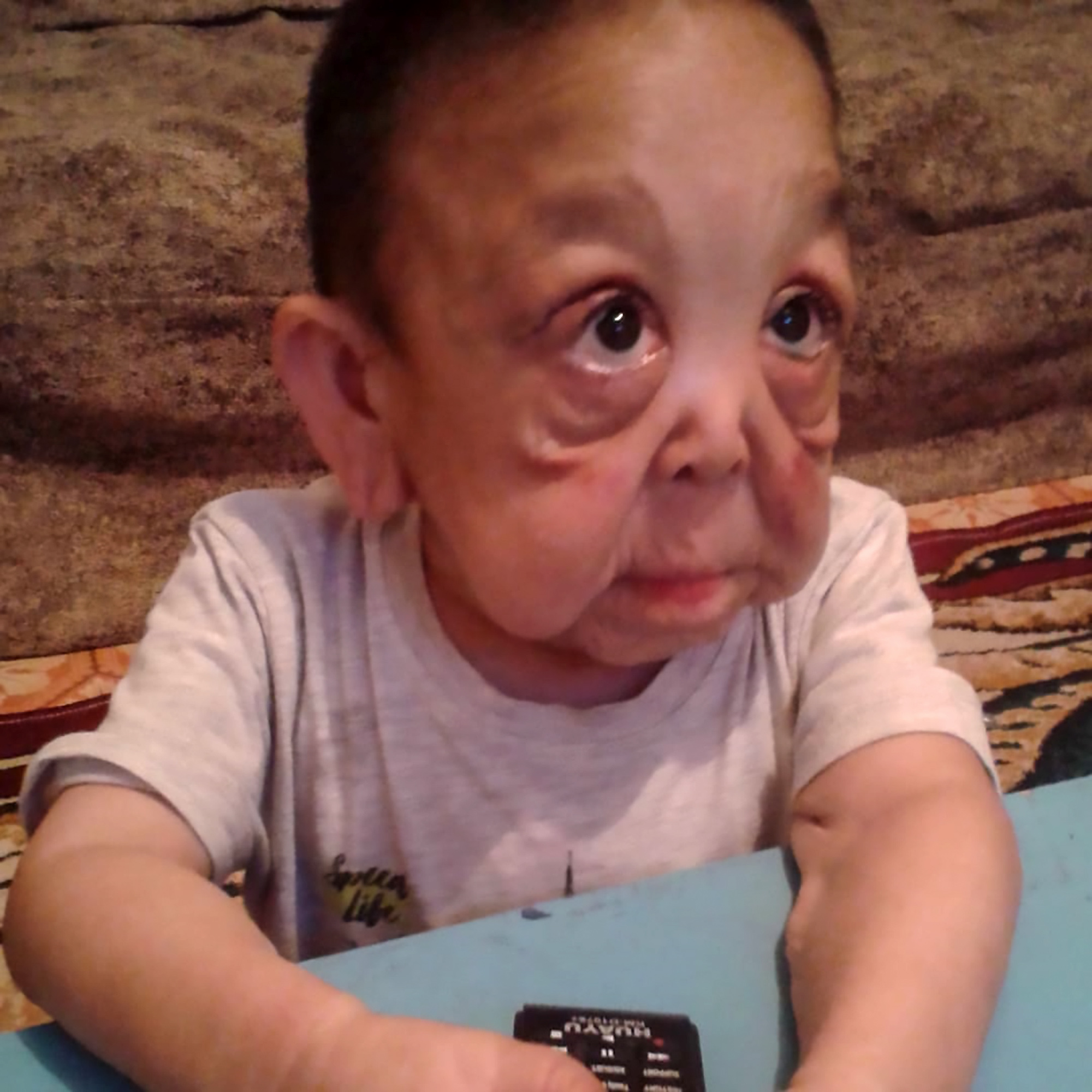 Real Life 'Benjamin Button' Boy Looks A Like Pensioner ...