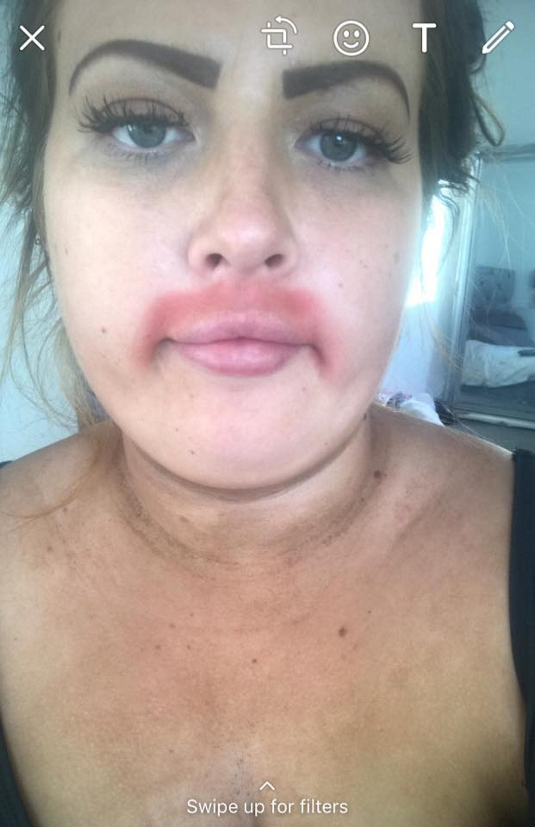 Facial waxing burn