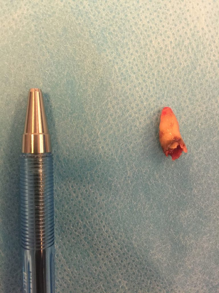 The tooth next to a pen for size. Credit: BMJ Case Reports