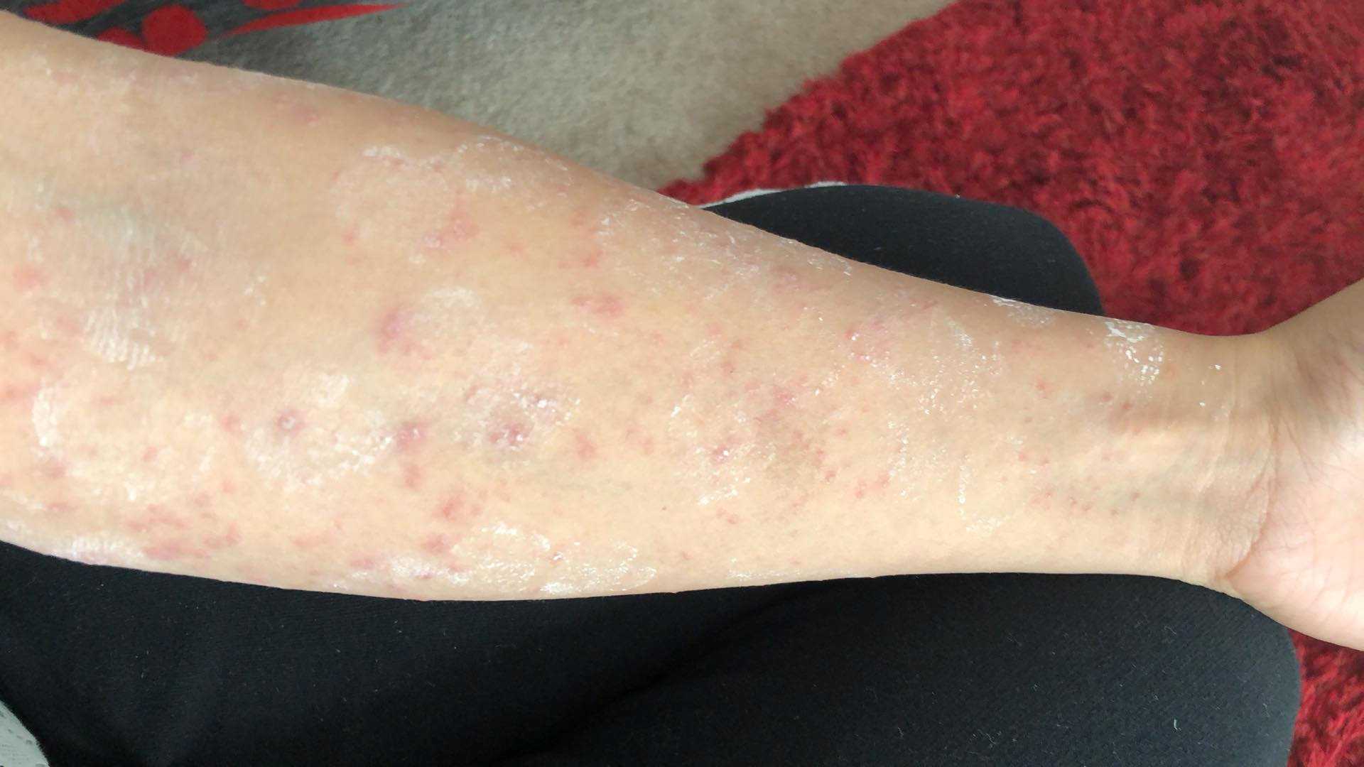 A rash caused by the caterpillars. Credit: SWNS