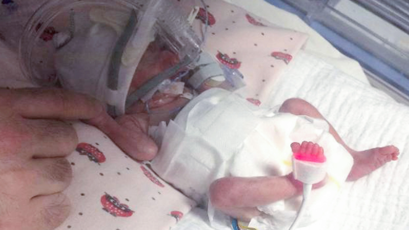Youngest Baby Ever To Survive In UK Now A Happy, Healthy Two Year Old