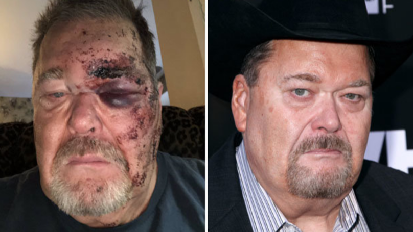 WWE's Jim Ross Literally Broke His Face Last Night