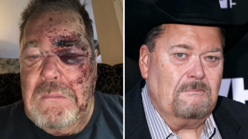 WWE的吉姆·罗斯昨晚确实打破了他的脸