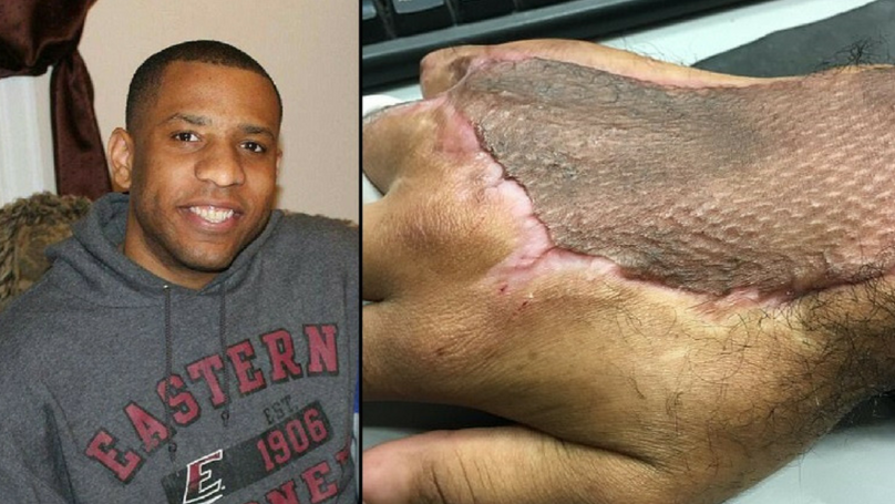 Bloke Contracted 'Flesh-Eating' Bacteria After Cracking His Knuckles