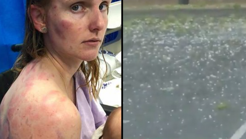 Mum Reveals Her Bruised Body After Shielding Her Baby From Huge Hailstones