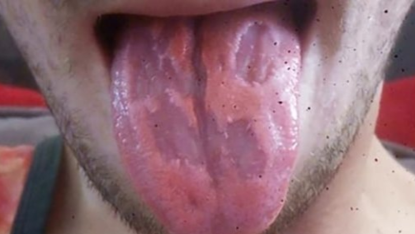 Teacher Shares Photo Of Tongue 'Eaten Away' By Energy Drinks