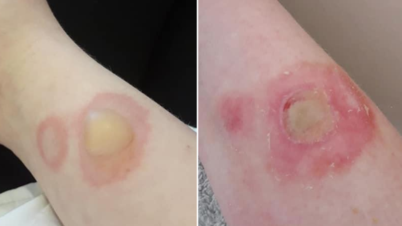 ​Mums Issues Warning After 'Deodorant Challenge' Leaves Daughter With Serious Burns