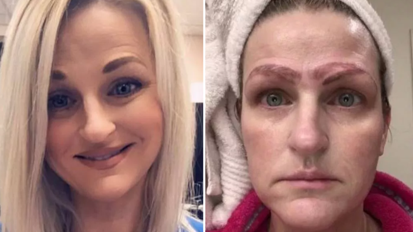 Devastated Mum Claims Botched £190 Microblading Gave Her 'Four Eyebrows'