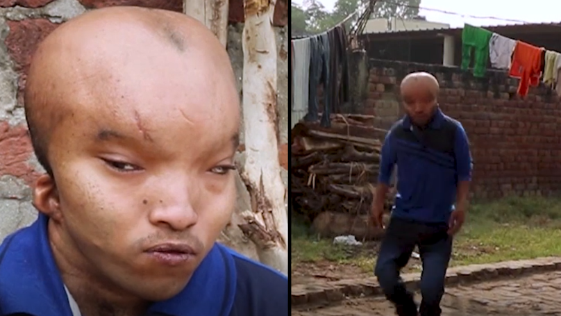 Man Given Cruel Nickname 'Alien' Hopes For Surgery So He Can Find Love