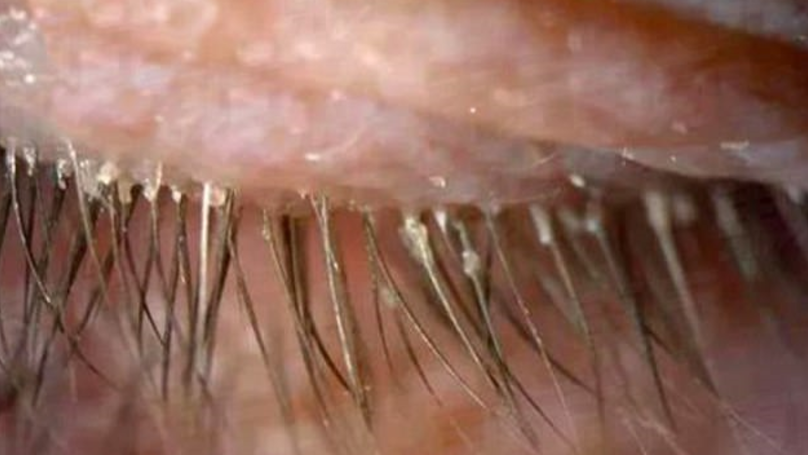 Womens Itchy Eyes Caused By 100 Parasites Living In Her Eyelashes