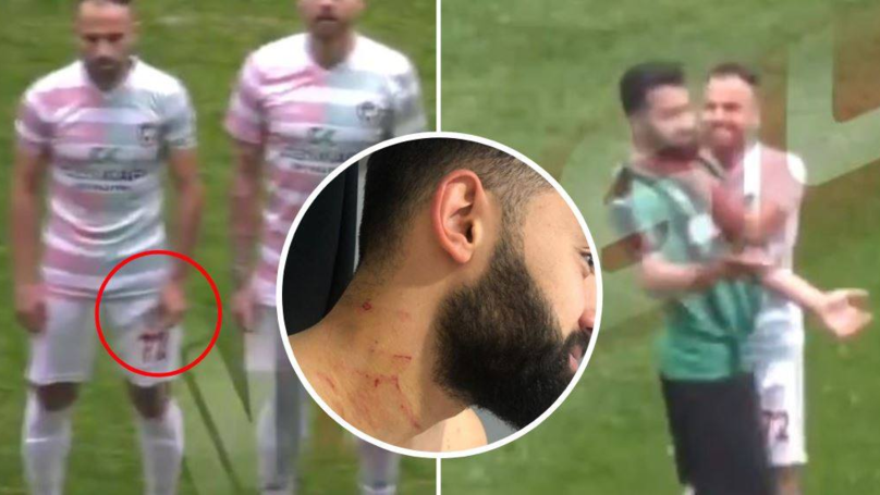 The Shocking Moment Amed SK Footballer Attacked Sakaryaspor Player Before The Match