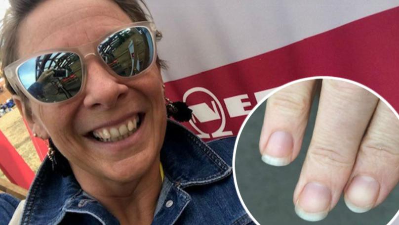 Lifelong Nail Biter Kicks Habit All Thanks To £4.99 Hypnosis App