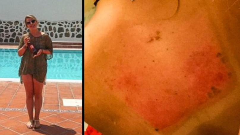 Woman Left With Back 'Like Pork Scratchings' After Horrendous Sun Burn