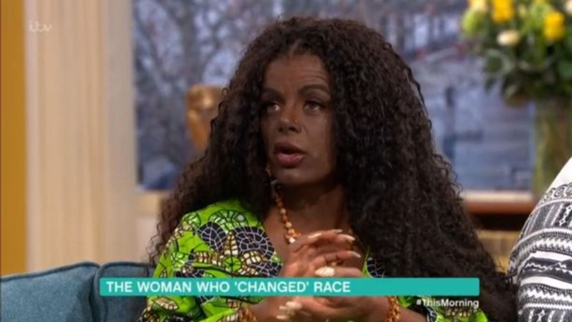 Woman On This Morning Says That She 'Changed Race' With Injections