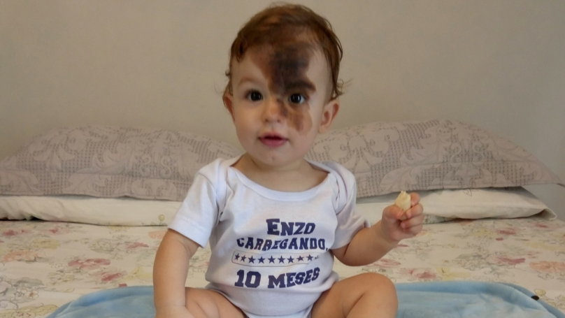 Mum Gets Replica Of Son's Facial Birthmark So She Can See What Life Is Like For Him