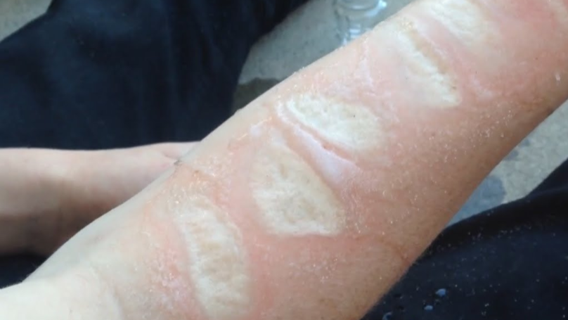 The 'Salt And Ice Challenge' Is The Dumbest Challenge Yet By Far