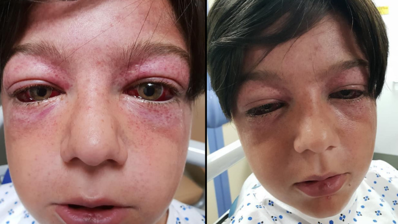 Horrific New Playground 'Stunt' Left Boy, 11, Looking Like An 'Alien'