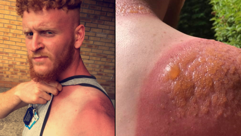 Scottish Bloke Gets Outrageous Second Degree Burns From Working In Sun LADbible