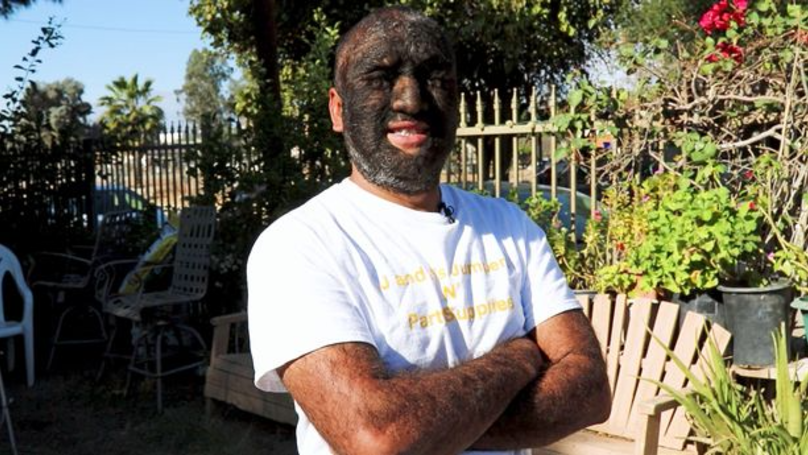 Larry Gomez May Well Be The Hairiest Man In The World
