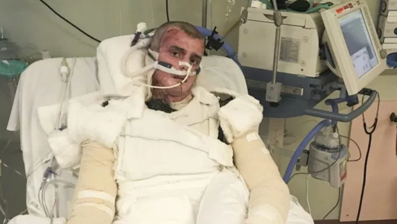 Teenager Almost Killed In Gas Explosion Is Now Well Enough To Watch His Football Team