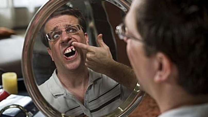 Ed Helms' Tooth Was Really Missing In The Hangover