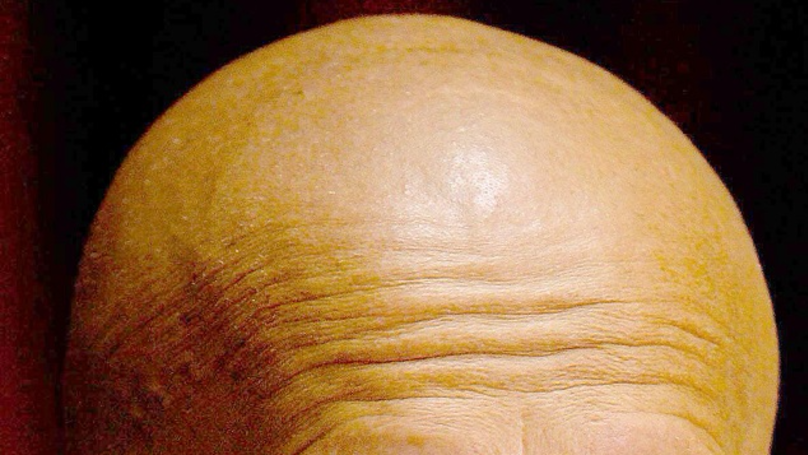 Potential Cure For Baldness Can Promote Hair Growth In Just Two Days