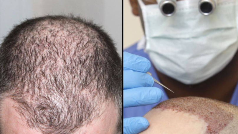 Man Dies From Suspected Allergic Reaction After 12-Hour Hair Transplant