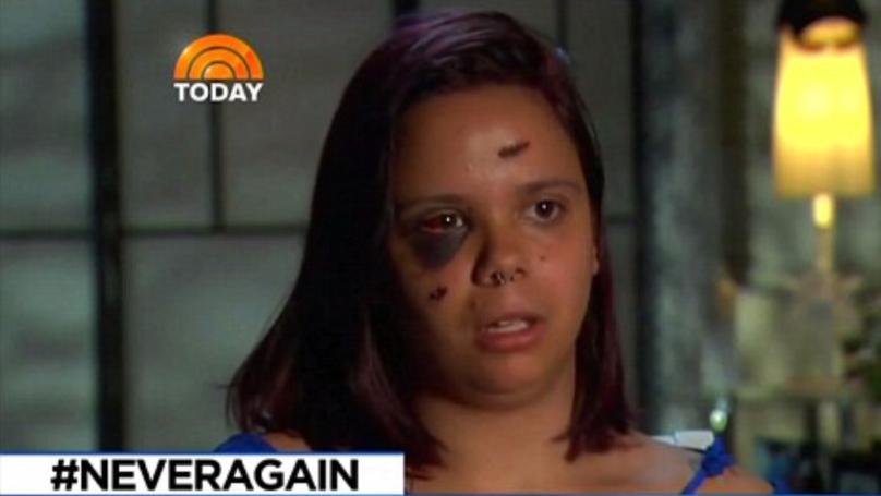 Florida School Massacre Victim Shot In Both Legs Left 'Unimpressed' By Trump