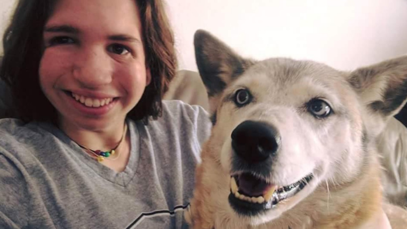 Dog Empowers Teen To Embrace Her Facial Differences And Reject Surgery